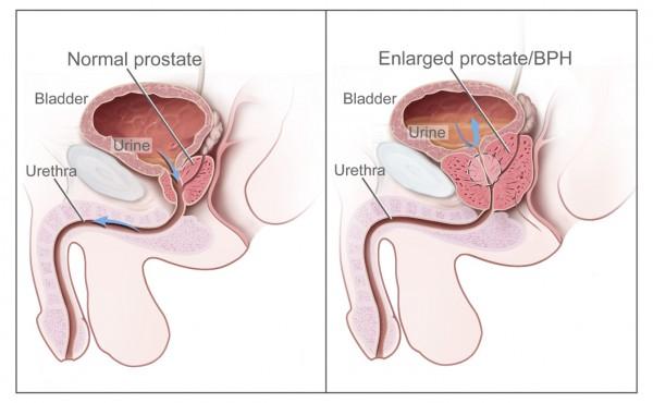 Benign_Prostatic_Hyperplasia_nci-vol-7137-300