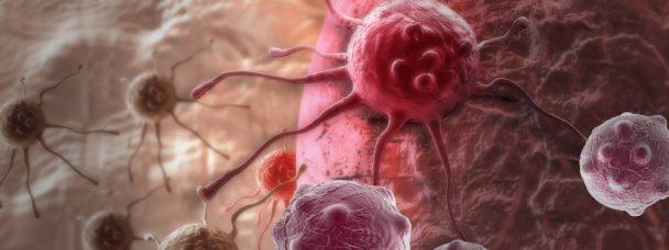 Un nouveau traitement (très) prometteur pour lutter contre le cancer de la prostate