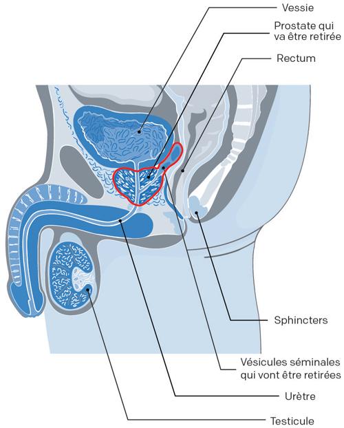 prostatequel sont les malaises de la prostate