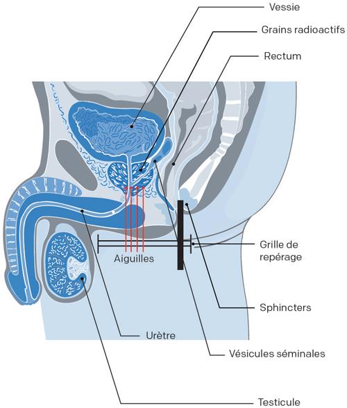 appareil de curiethérapie cancer prostate
