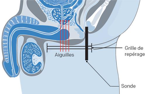 prostate avec curiethérapie haut débit cancer prostate