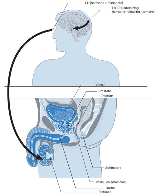 Illustration de l'effet de l'hormonothérapie pour un cancer prostate
