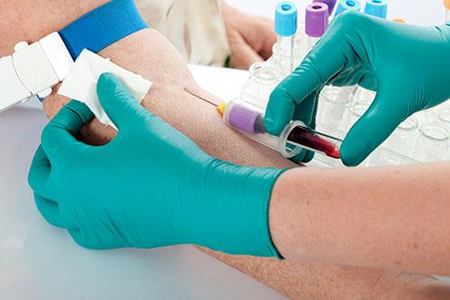 suivi médicale de l'effet de l'hormonothérapie pour un cancer prostate