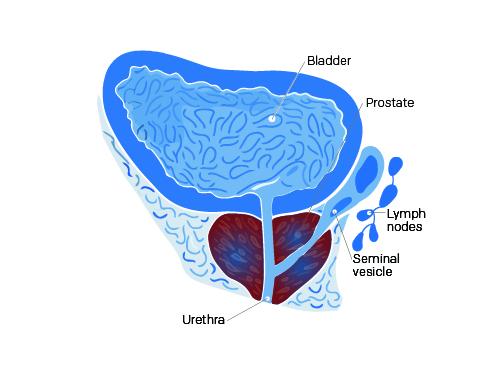 Illustration d'une prostatite