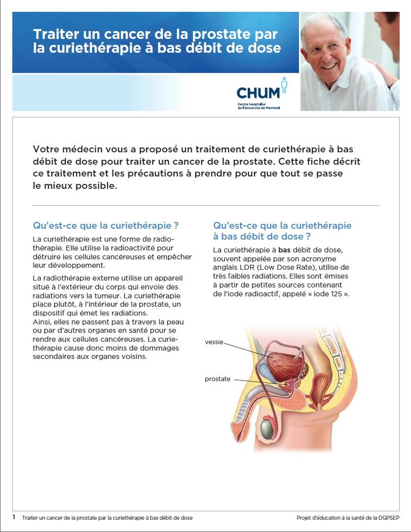 Curiethérapie-bas-débit-ou-permanent-cancer-prostate