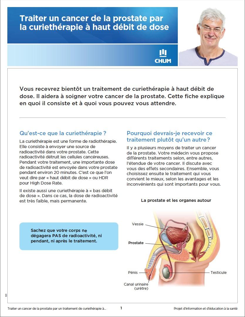 Curiethérapie-haut-débit-cancer-prostate
