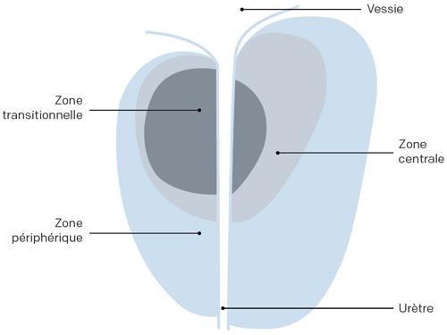 Illustration des 3 zones de la prostate de l'homme cancer prostate