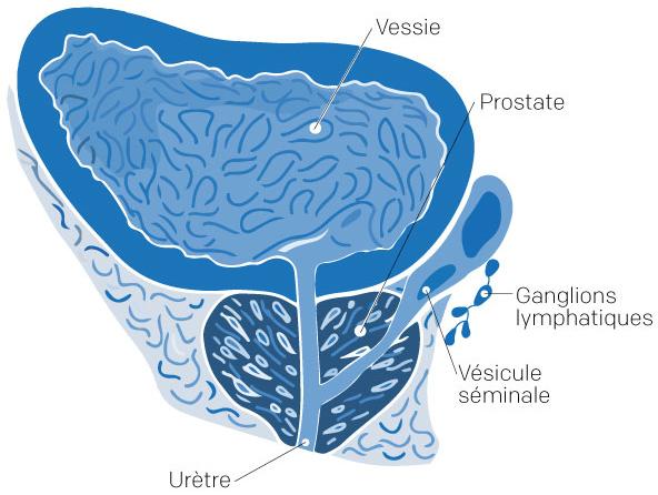Illustration de l'appareil de l'homme pour un cancer prostate