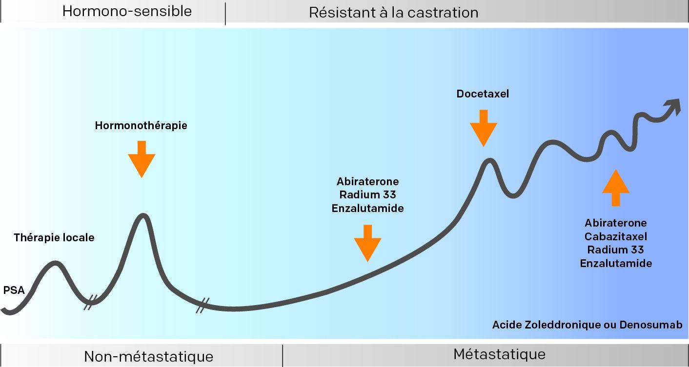 Illustration des traitements selon l'évolution d'un cancer prostate