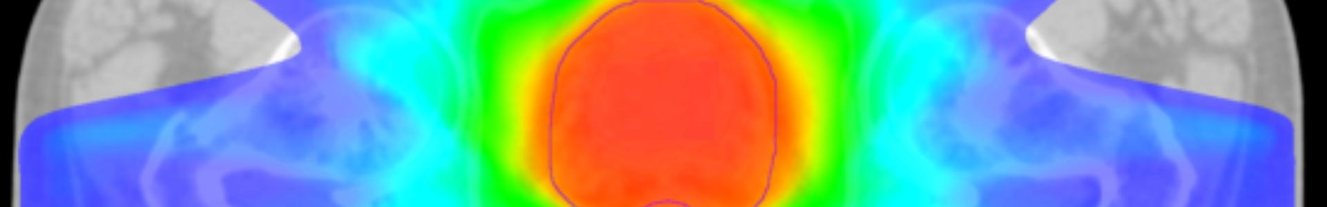 image irm sur moniteur radiothérapie du cancer de la prostate