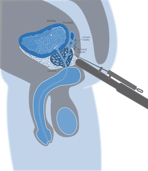 illustration biopsie pour cancer de la prostate