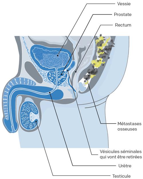 traitement des os cancer prostate