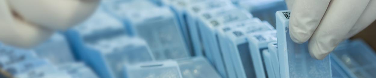 Mains de chercheurs en action à la Biobanque PROCURE du cancer de la prostate