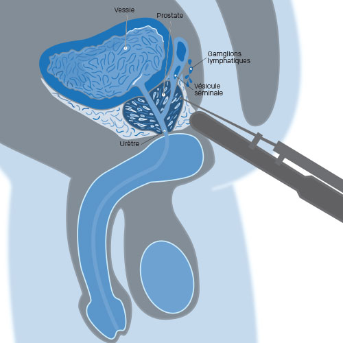 illustration biopsie pour cancer de la prostate