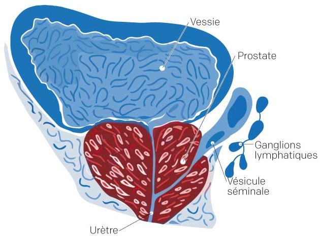 prostatite chronique non bactérienne forum
